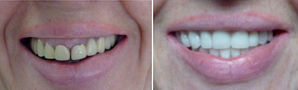 All-on-4 Dental Implant - Actual before and after photos